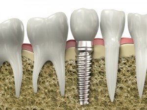 Dental-Implant-300x225