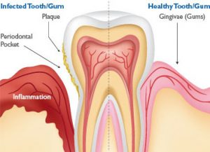 gumDisease_tooth