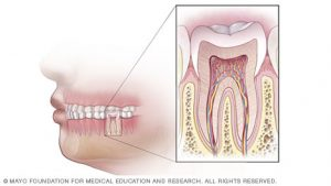 overview-of-root-canal