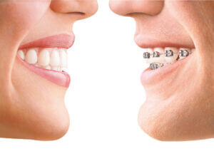 invisalign-comparison