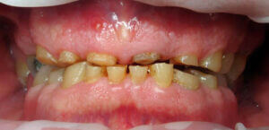 photo-of-years-of-tooth-grinding-or-bruxism