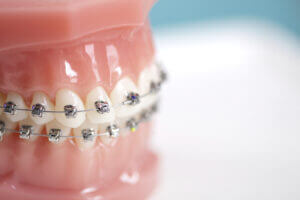 what-is-orthodontics