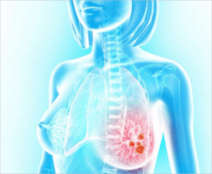Gum-disease-linked-to-breast-cancer