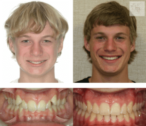 orthodontics-braces-before-and-after-02