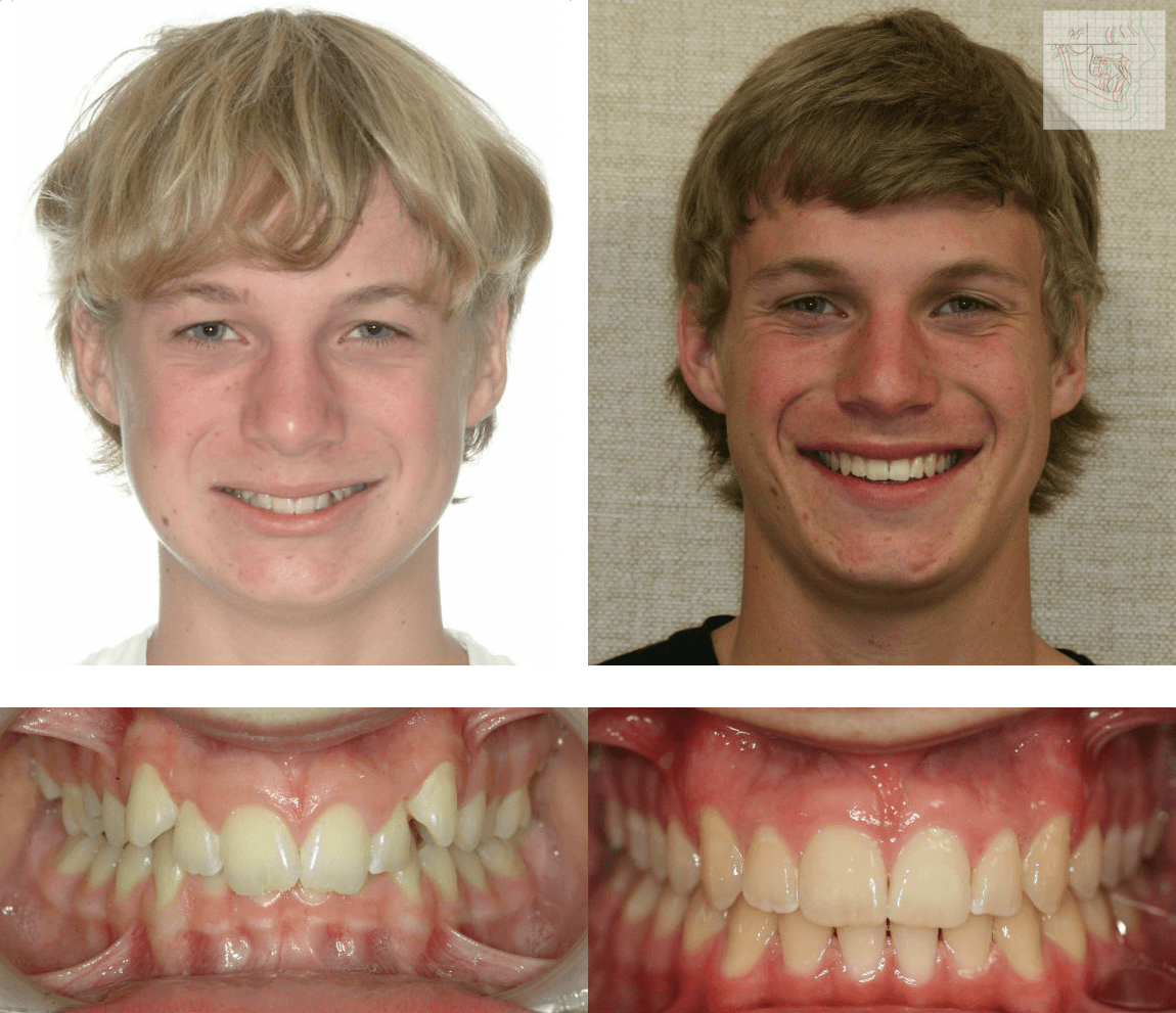 orthodontics-braces-before-and-after-02 - DentisteALaval.com