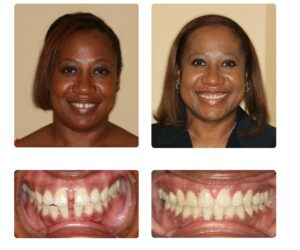 ruby-adult-braces-before-and-after