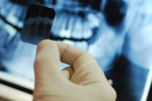 Dental-Xrays2