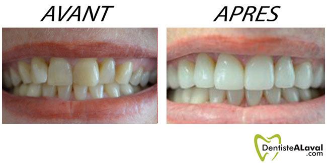 Avant après Dentisterie esthétique
